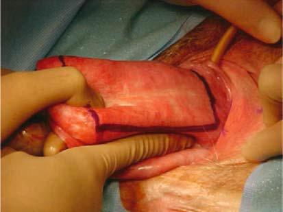 lesioni vaginali