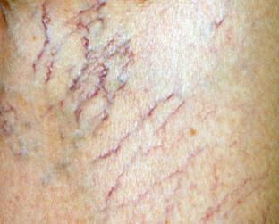 Asterischi vascolari di un tatuaggio su