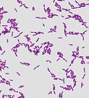 Hits: 16Flora vaginale o flora batterica vaginale:si definisce flora vaginale l'insieme di microorganismi, in maggior parte di origine batterica, che colonizzano la cavità vaginale come avviene per la maggior parte […]