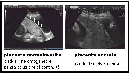 Hits: 3Placenta accreta: è un'anomalia di inserzione della placenta con invasione dei villi coriali nella muscolatura uterina. L'invasione miometriale avviene superficialmente (placenta accreta 75%), parzialmente nel miometrio (placenta increta 15%) […]