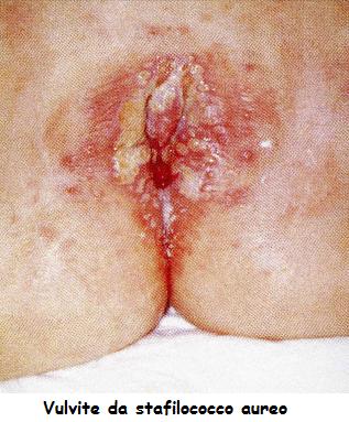 Le medicine da sanguinare di gemorroidalny