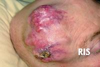 Hits: 40Sarcoma mammario indotto da radioterapia di Tatjana Volpicelli Il sarcoma mammario indotto da radiazioni (RIS) è una rara e aggressiva neoplasia con prognosi infausta, che quasi sempre insorge in […]