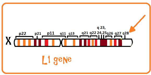 Hits: 33La sindrome L1, detta anche Sindrome CRASH o Sindrome L1CAM o Sindrome ipoplasia del corpo calloso-ritardo mentale-pollici addotti-spasticità-idrocefalo,è disturbo congenito dello sviluppo legato al cromosoma X e caratterizzato da […]