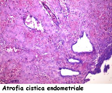 Hits: 160ATROFIA ENDOMETRIALE – Per atrofia endometriale si intende la diminuzione dello spessore endometriale chenella donna in età fertile varia, nelle varie fasi del ciclo mestruale, da 1 a 7 […]