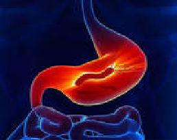 Hits: 6L'Helicobacter pyloriè unbatteriomicroaerofiloGram-negativo, rinvenuto per la prima volta nellostomaco nel 1982. Non a caso, più della metà della popolazione mondiale ospita l'Helicobacter pylori nel tratto gastrointestinale superiore. L'HP vive […]